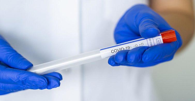 Portugal realiza 83 mil testes ao coronavírus por cada milhão de habitantes